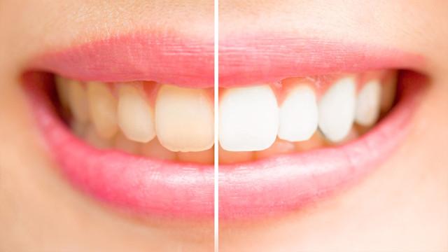 Dişlerde oluşan sararmalara dikkat!