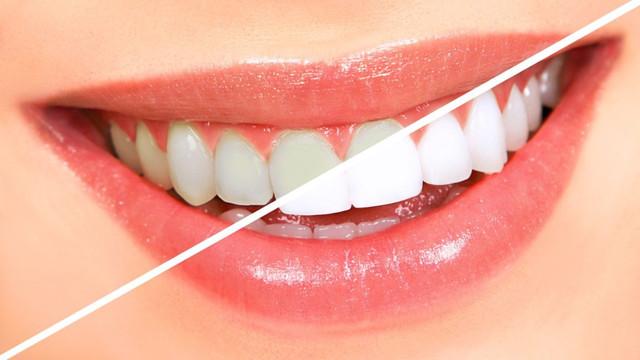 'Dişleri çatlatabilen' problemlere dikkat!