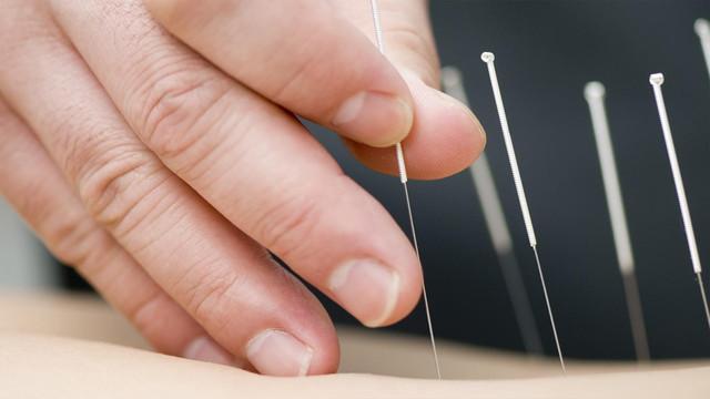 Cinsel organına akupunktur iğnesi batıran çocuk ameliyata alındı!