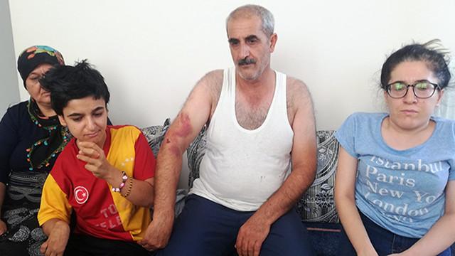 Engelli kız ve babasını bayıltana kadar dövdüler!