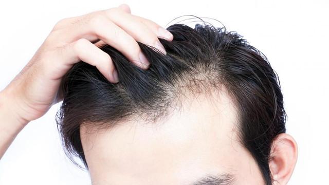 Hormonal değişiklikler saçları dökebiliyor