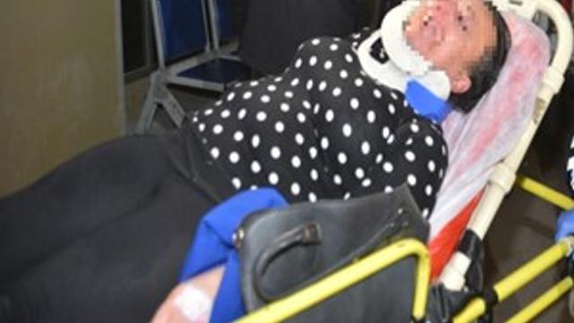 Erkek arkadaşı tarafından darp edilen kadın petrol istasyonuna sığındı