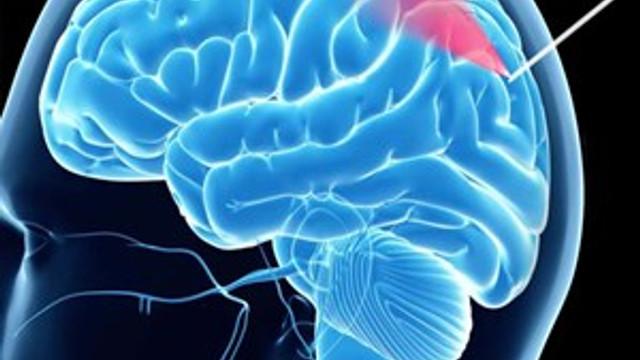 Beyinde ameliyat gerektiren ciddi sorunlara dikkat!