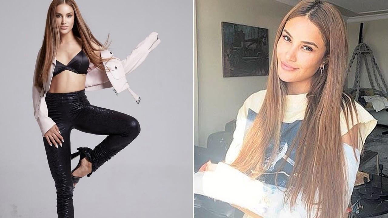 Miss Fashion World 2020 birincisi hem kolunu hem de bileğini kırdı